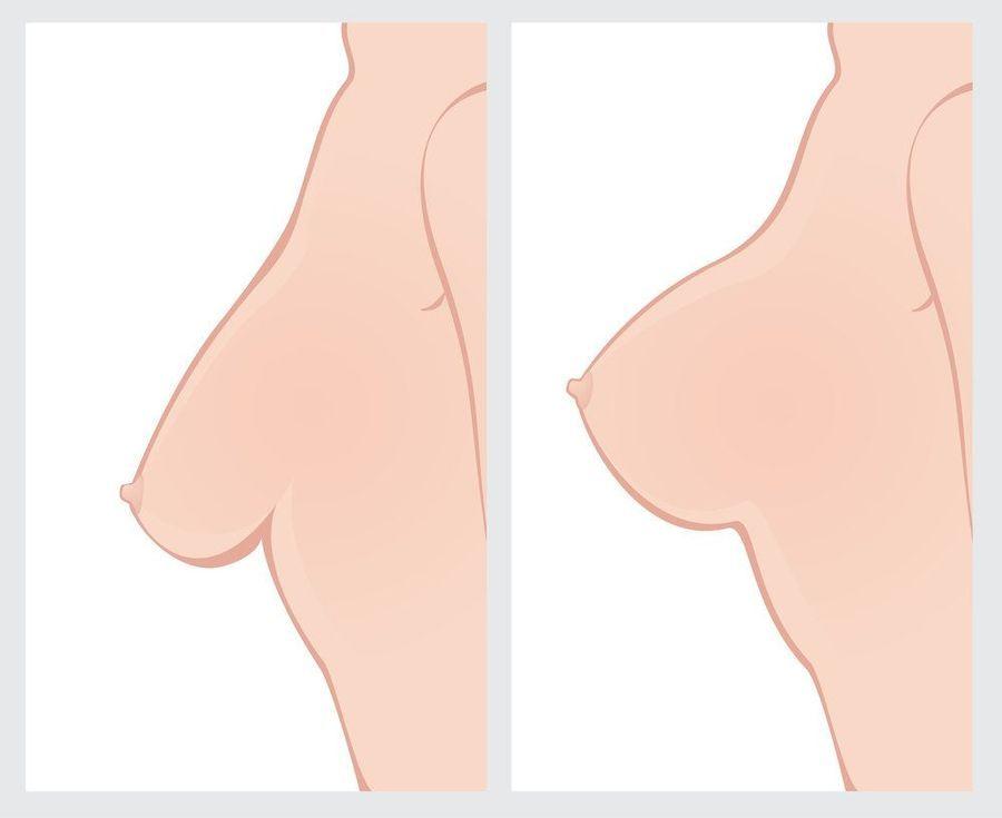 Breast lift surgery in Mumbai